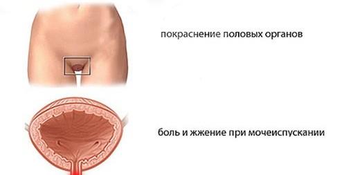 Верхние половые губы меньше