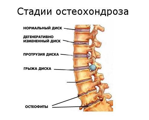 Как определить шейный остеохондроз и как лечить