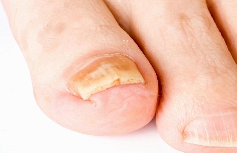 Как распознать грибок на ногтях ног