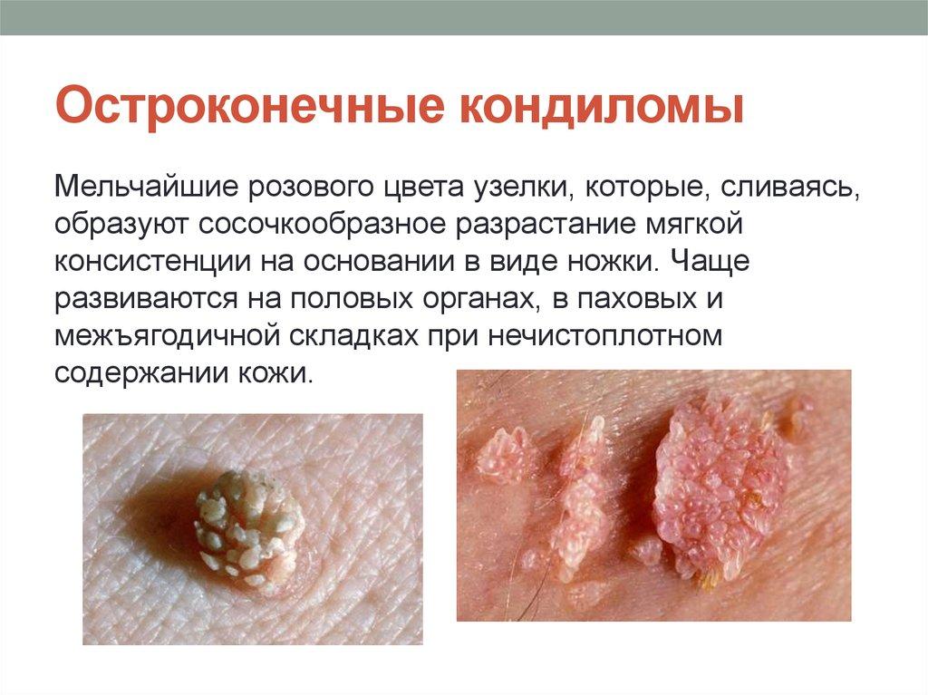 Папиллома или бородавка лечение в домашних условиях