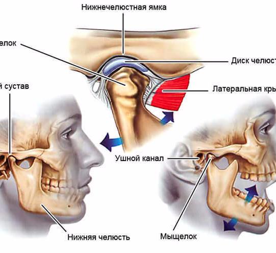 Болит челюсть и ухо чем лечить в домашних условиях