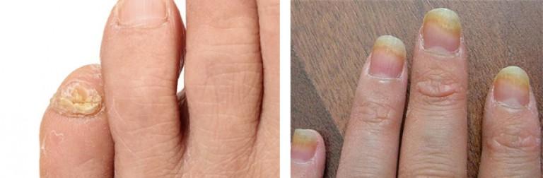 Начинающий грибок на ногтях ног