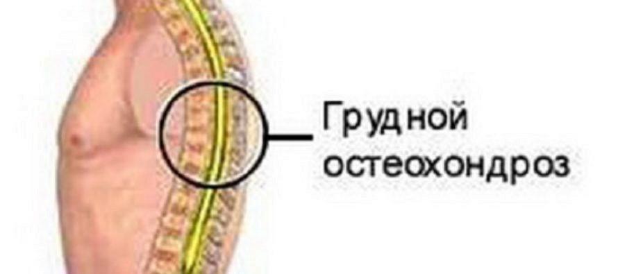 как вылечить остеохондроз шейного позвоночника