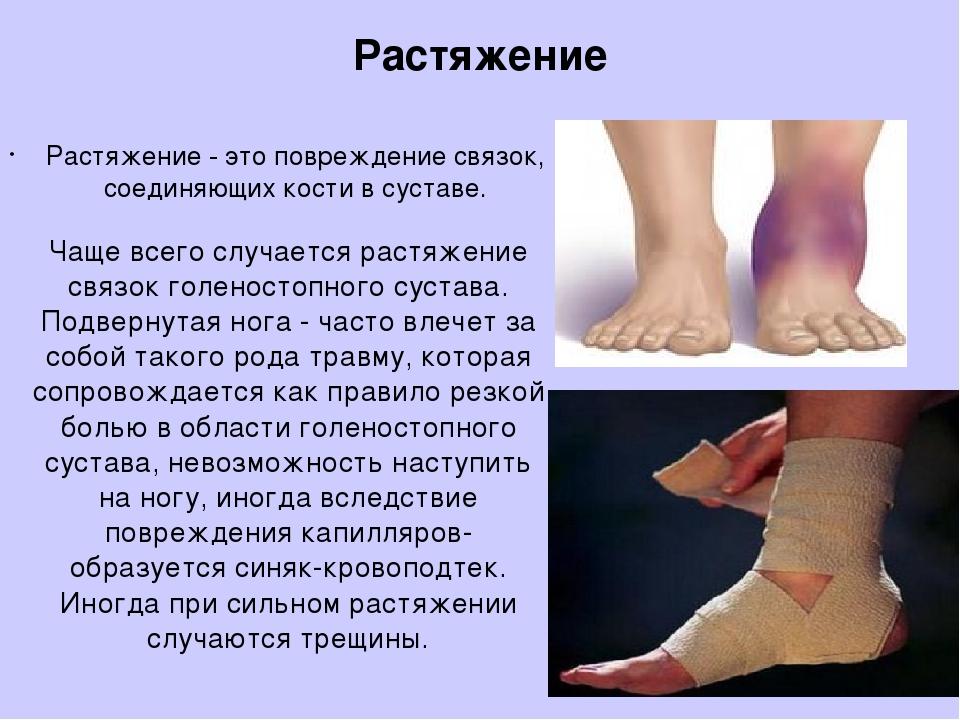 Текут ноги что делать лечение народными средствами 136