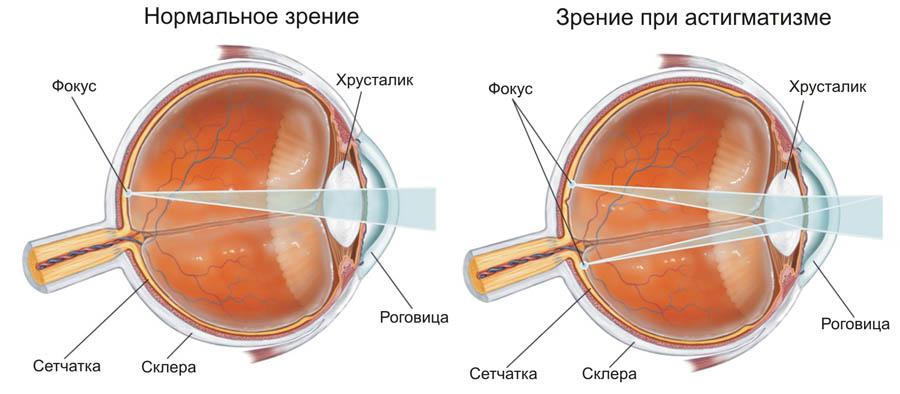 Зрение 4 какие линзы нужны
