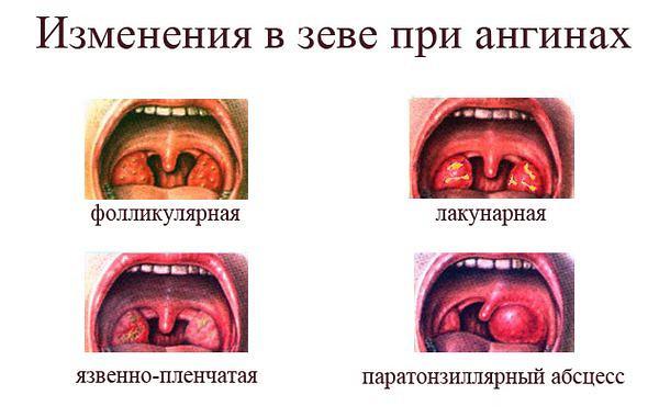 Сильно болит горло у ребенка и температура