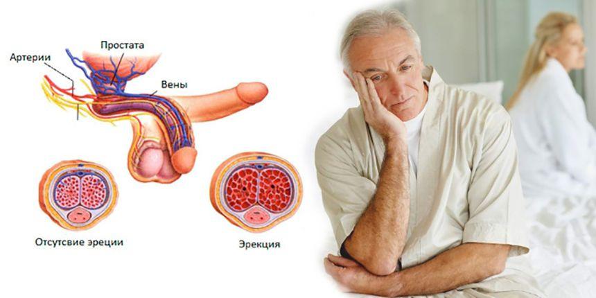 Безопасные средства для лечения эректильной дисфункции