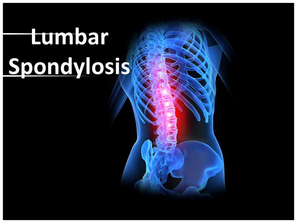 Spondylolisthesis behandeling
