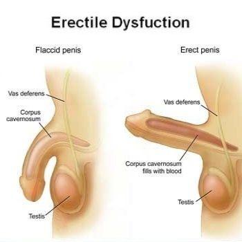 Плохая эрекция боль в яичках