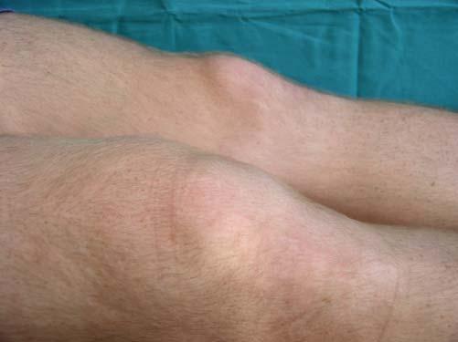 Болят суставы пальцев рук - причина, как лечить, к