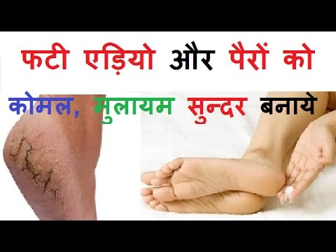 Fissure ka ilaj in hindi